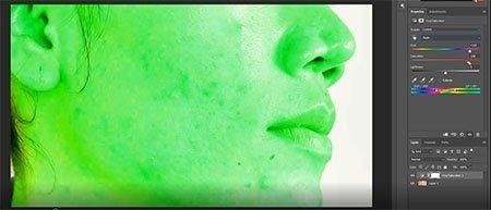 Adjust sliders to remove acne